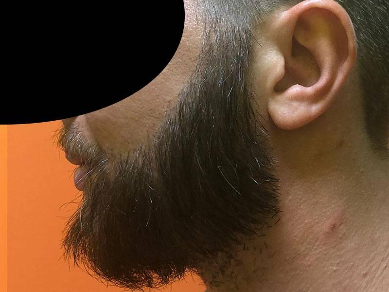 Trapianto di Barba: cos'è, come si effettua e quanto costa