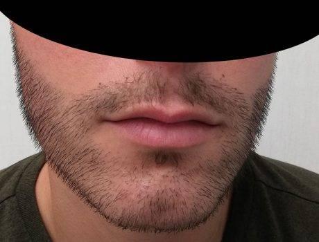Trapianto Barba – 30 Anni – 4000 Innesti – 2 Sessioni