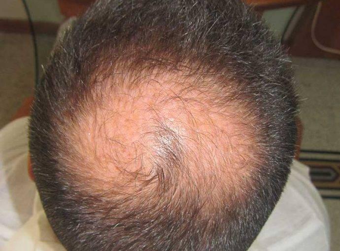 Alopecia Androgenetica: cos'è, cause e cure