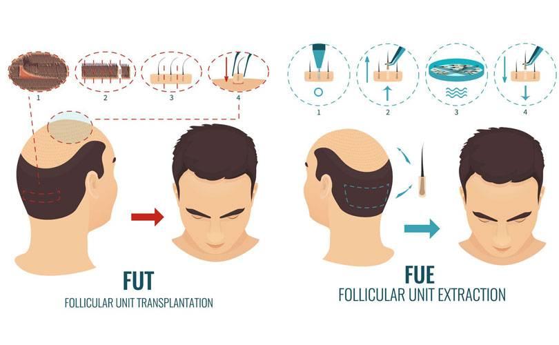 differenze-fue-fut