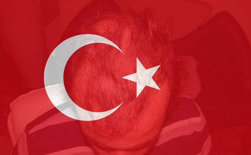 Trapianto Capelli Turchia … altro che vacanza