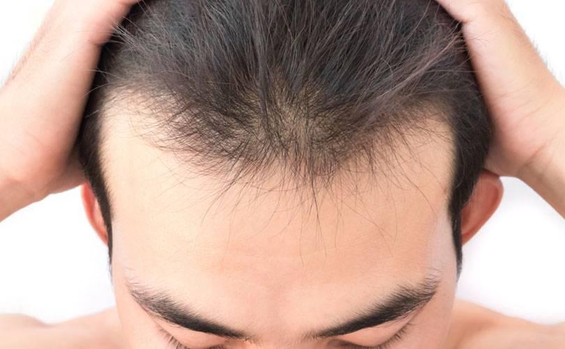 Invecchiamento dei capelli e cuoio capelluto: cause e rimedi
