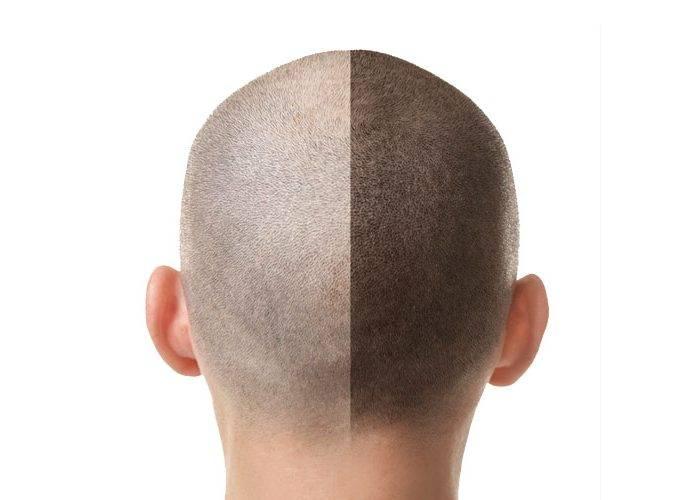 Tricopigmentazione o Tatuaggio Capelli: la soluzione per combattere la Calvizie