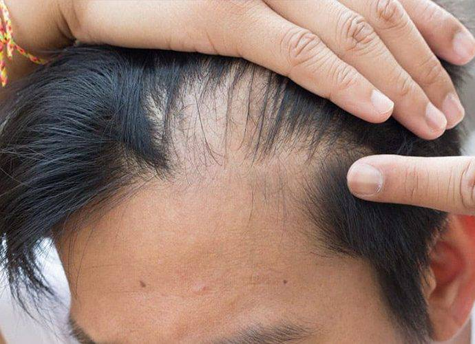 Alopecia da stress: cos'è, cause e come si cura